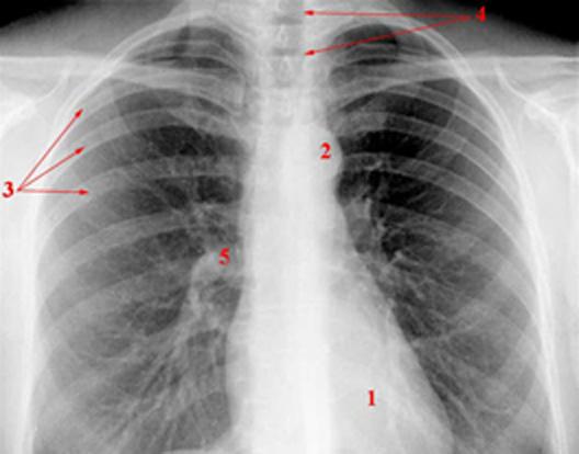 Diagnosedaten für e-Health-Anwendungen verfügbar machen.